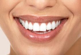 adult smile after braces