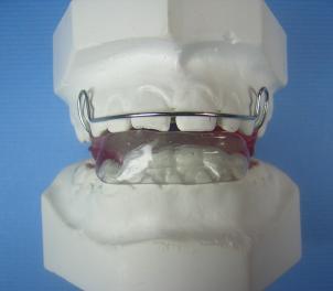 Bionator I Picture 1