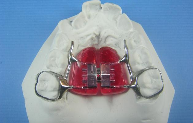 Rpe W Acrylic Pads Accutech Orthodontic Laboratory Products