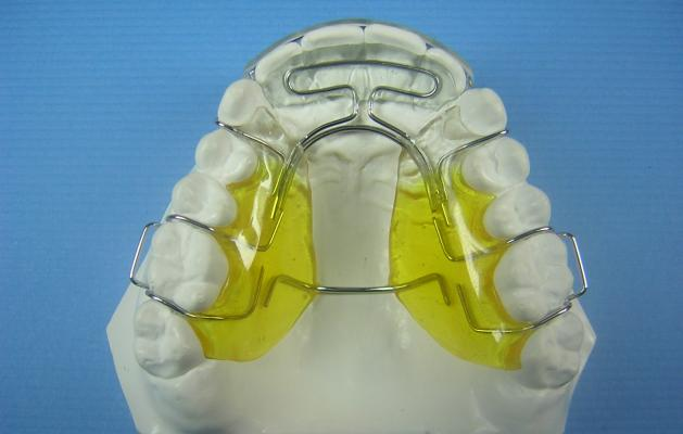 Modified Spring Retainer Super + 2   Accutech Orthodontic